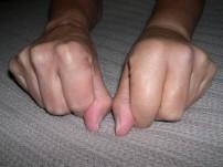 knuckleswelling
